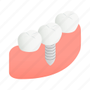 clean, dental, dentist, gum, implant, isometric, tooth icon