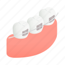 brace, dental, female, isometric, lips, mouth, person icon