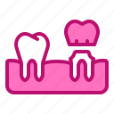clinic, crown, dental, dentist, molars, tooth icon