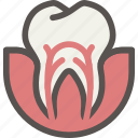 canal, dental, dentist, health, root, surgery, tooth icon