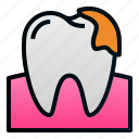 decay, dental, dentist, health, hospital, tartar, teeth