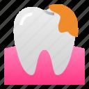 decay, dental, dentist, health, hospital, tartar, teeth