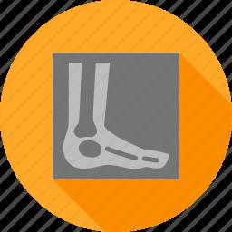 ankle, bones, examination, foot, image, leg, x ray icon
