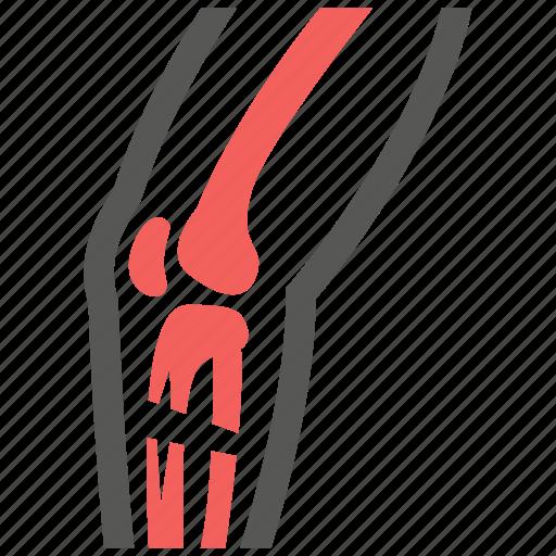 bone, broken, crack, leg, orthopedic, orthopedics, patient icon