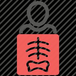 bone, bones, radiology, radioscopy, skeleton, skull, xray icon