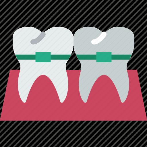 Braces, dental, dentist, doctor, hospital, teeth icon - Download on Iconfinder