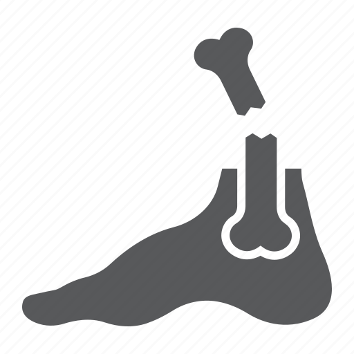 Bone, broken, foot, fracture, injury, leg, pain icon - Download on Iconfinder