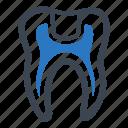 cavity, dental fillings, teeth